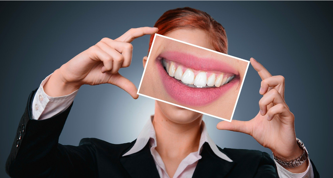 Velká ústa a zuby, úsměv